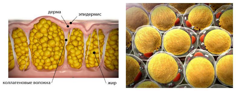 Целлюлит жировые клетки